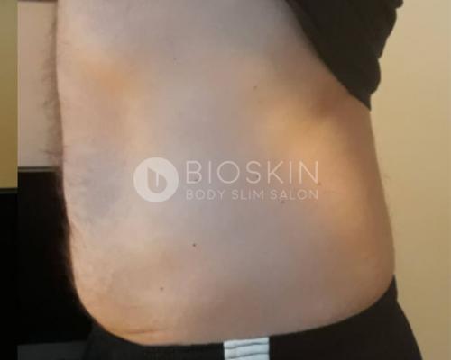 zsírbontás férfi 1