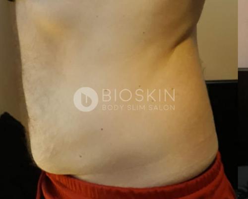 zsírbontás férfi