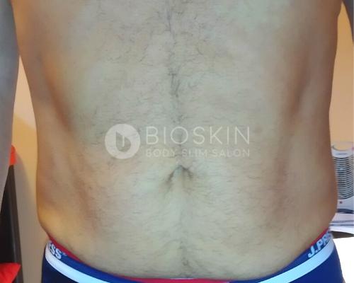 zsírbontás hason férfiaknak